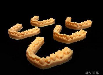 3D печать в стоматологии Превью